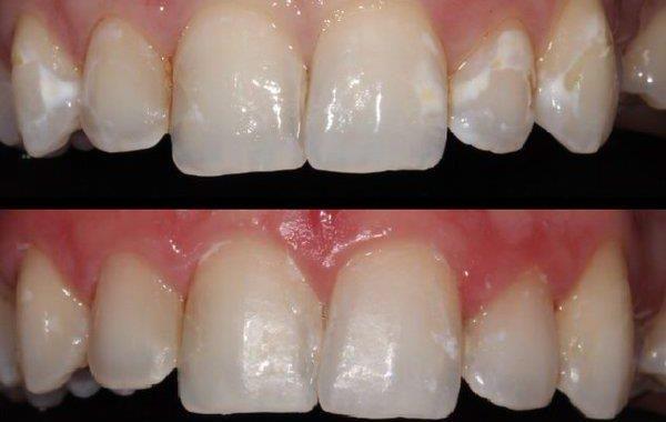 White Spot - Come trattare le macchie nei denti