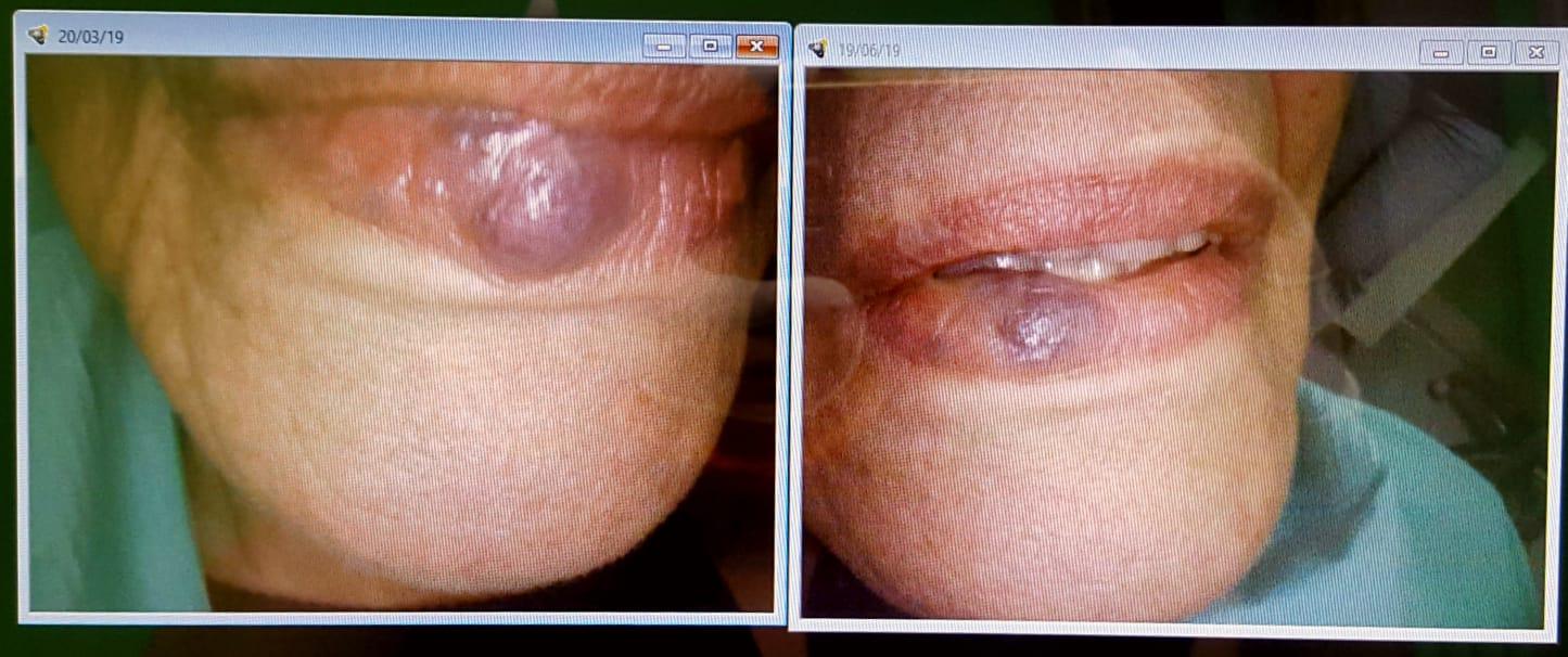 Riduzione di angioma labiale tramite applicazione di laser a diodi.